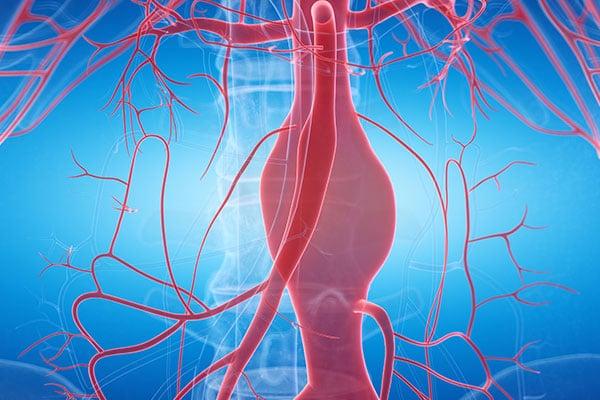 aortic-aneurysm-2